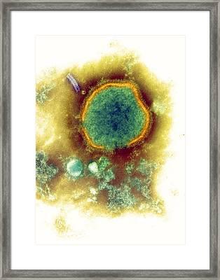 Measles Virus, Tem Framed Print by Nibsc