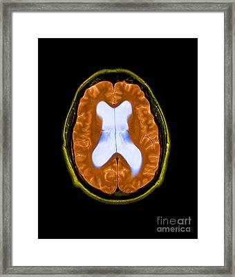 Mri Communicating Hydrocephalus Nph Framed Print by Medical Body Scans