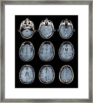 Normal Brain, Mri Scans Framed Print