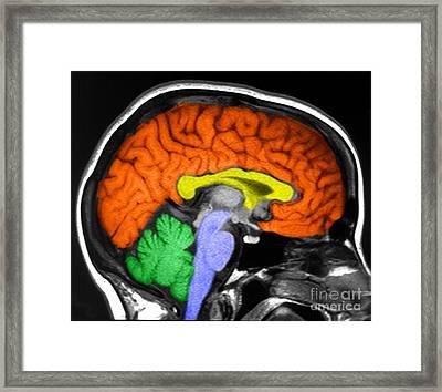 Human Brain Framed Print by Ted Kinsman