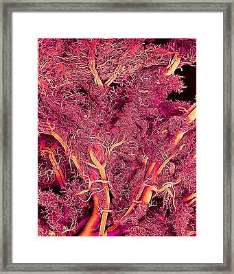 Blood Vessels, Sem Framed Print by Susumu Nishinaga
