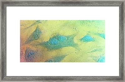 Hela Cells, Light Micrograph Framed Print