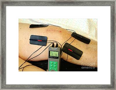 Transcutaneous Electric Nerve Framed Print by Scimat