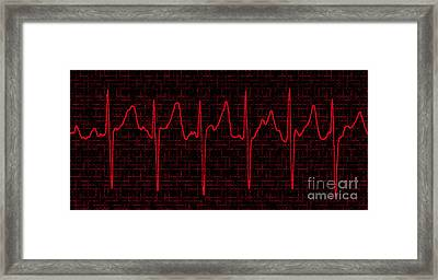 Atrial Fibrillation Framed Print by Science Source