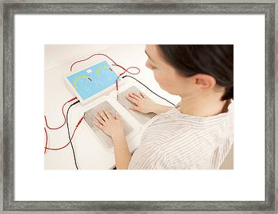 Iontophoresis For Excess Sweating Framed Print