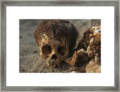 A Close View Of A Human Skull Framed Print by Ira Block