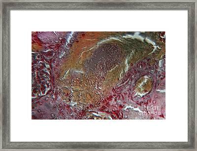 Anthrax Framed Print by Eric V. Grave