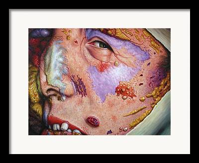 Disease Framed Prints