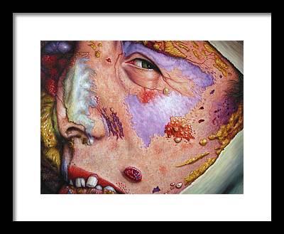 Diseases Framed Prints