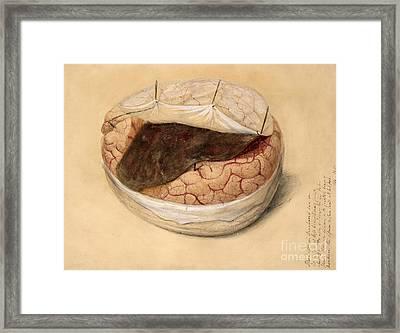 Blood Clot, Brain, Illustration 1869 Framed Print