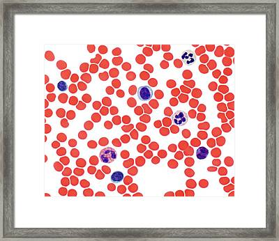 Blood Smear, Light Micrograph Framed Print by Steve Gschmeissner