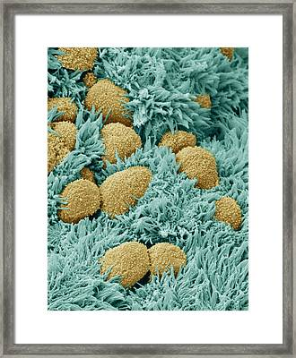 Brain Lining Framed Print by Steve Gschmeissner