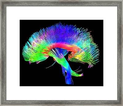 Brain Pathways Framed Print