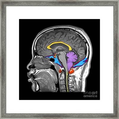 Chiari I Malformation Mri Framed Print by Living Art Enterprises and Photo Researchers