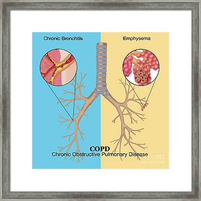 Chronic Obstructive Pulmonary Disease Framed Print by Monica Schroeder