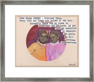 Conjoined Hair Twins Medical Experiment  Framed Print