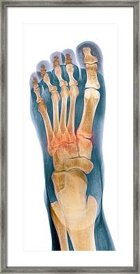 Crushed Broken Foot, X-ray Framed Print by