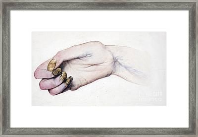 Deformed Hand, Division Of Median Nerve Framed Print by Wellcome Images