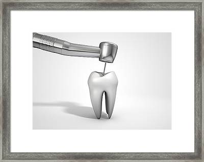 Dentists Drill And Tooth Framed Print