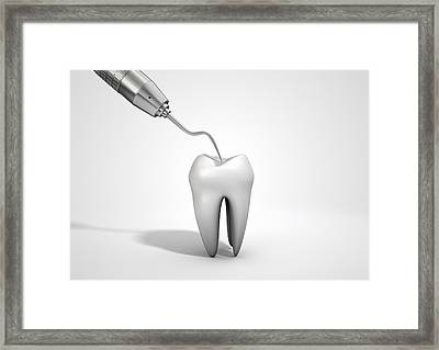Dentists Probe Hook And Tooth Framed Print
