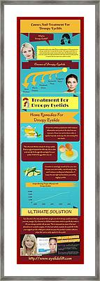 Droopy Eyelids - Causes And Treatment Framed Print