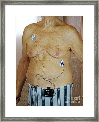 Elderly Man With Cardiac Event Recorder Framed Print by Scimat