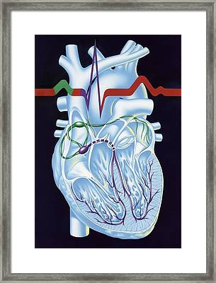 Electrical Conduction In The Heart, Artwork Framed Print