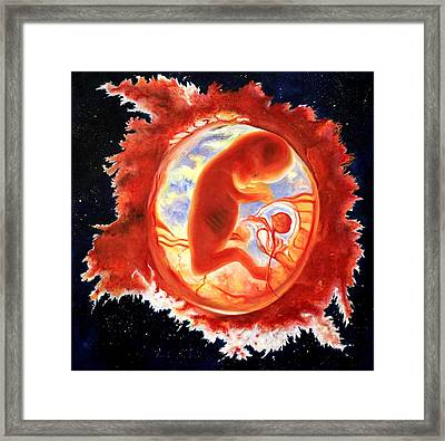 Fetus Framed Print by Konstantinos Kounalis
