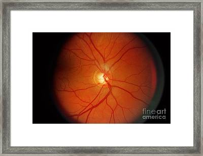 Glaucoma Framed Print by Science Source