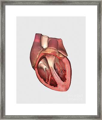 Heart Valves Showing Pulmonary Valve Framed Print