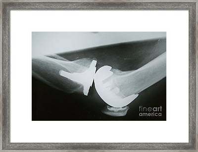 Knee Replacement Framed Print