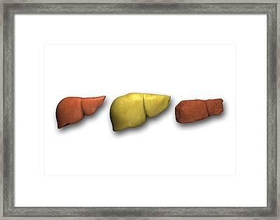 Liver: Normal, Fatty, Cirrhotic Framed Print by Pasieka