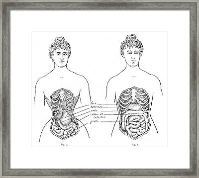 Medical Crimes Of The Corset, 1908 Framed Print