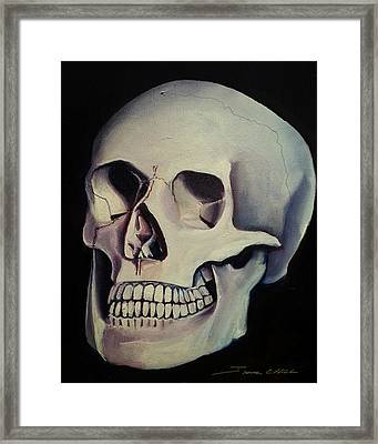 Medical Skull  Framed Print by James Christopher Hill