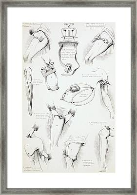 Methods Of Arresting Bleeding. From The Framed Print by Vintage Design Pics