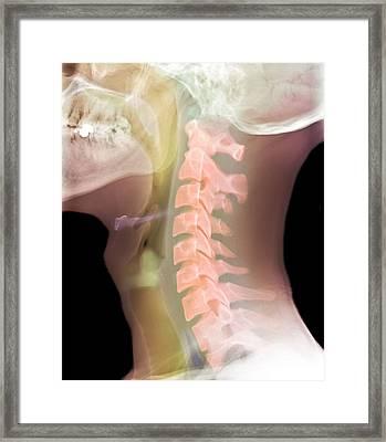 Normal Neck, X-ray Framed Print by Du Cane Medical Imaging Ltd