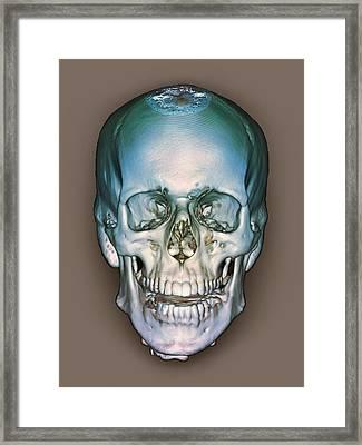 Normal Skull, 3d Ct Scan Framed Print