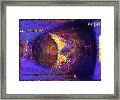 Oculus Dexter Framed Print