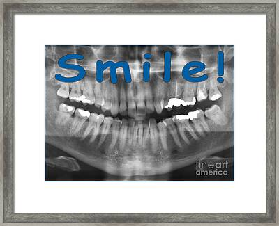 Panoramic Dental X-ray With A Smile  Framed Print by Ilan Rosen