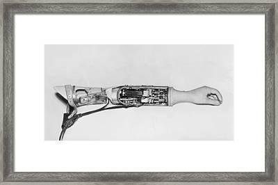 Prosthetic Arm Showing Interior Mechanisms (b&w) Framed Print by Fpg