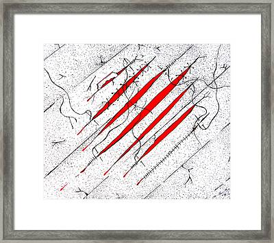 Recovering From The Hurt Framed Print by Dwayne Hamilton