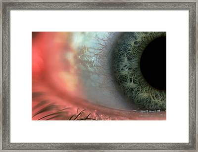 Red Eye Framed Print by EXparte SE