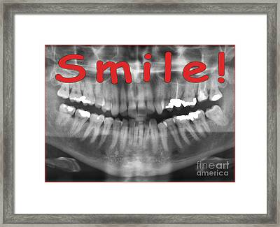 Red Panoramic Dental X-ray With A Smile  Framed Print by Ilan Rosen