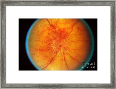 Retinal Papilledema Framed Print by Science Source