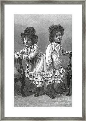 Rosa And Josefa Blaek, Conjoined Twins Framed Print by Science Source