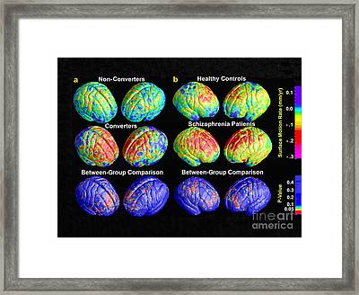 Schizophrenia, 3d Mri Scans Framed Print by Science Source