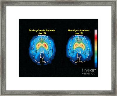 Schizophrenia And Normal Brain, Pet Framed Print by Science Source