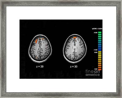 Schizophrenia, Mri Scans Framed Print by Science Source