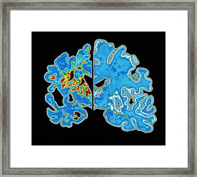 Sectioned Brains: Alzheimer's Disease Vs Normal Framed Print by Pasieka