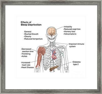 Sleep Deprivation Effects, Illustration Framed Print by Spencer Sutton